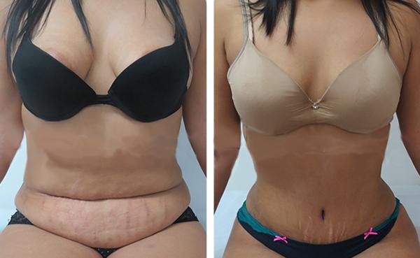 Ver fotos de una abdominoplastia 91